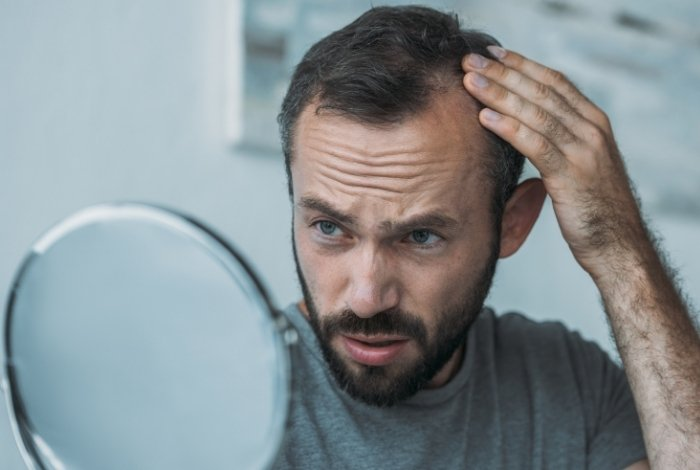 Minoxidil and Finasteride - What is the Difference