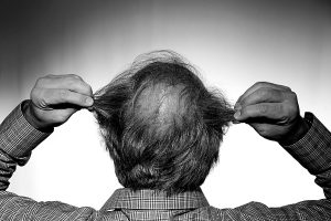 How To Choose A Haircut For Bald Spot On Crown