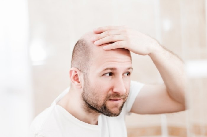 How To Choose The Best Haircut For Bald Spot On Crown