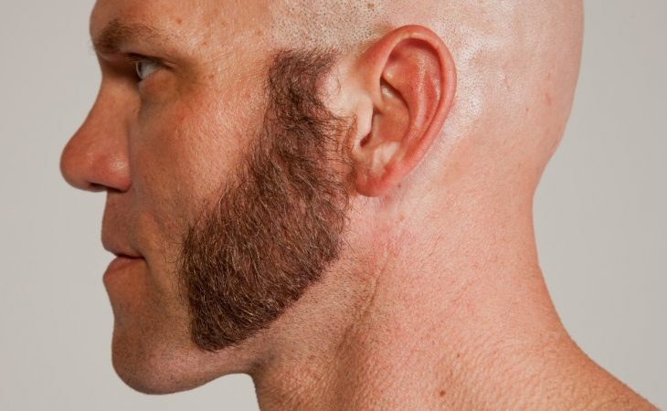 How To Grow Mutton Chop Side Burns